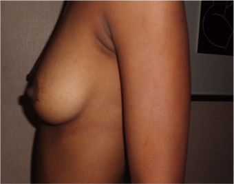 Breast Augmentation  before 1007268