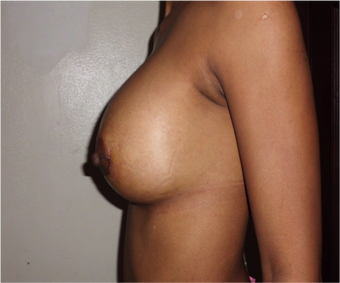 Breast Augmentation  after 1007268