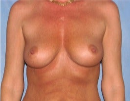 45-54 year old woman treated with Breast Augmentation before 3345153