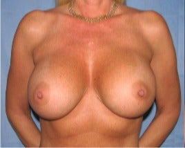 45-54 year old woman treated with Breast Augmentation after 3345153