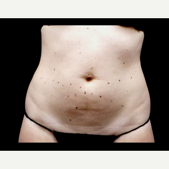 25-34 year old woman treated with truSculpt before 3564719
