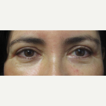 45-54 year old woman treated with Upper eyelid Surgery after 3246011