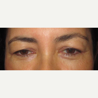 45-54 year old woman treated with Upper eyelid Surgery before 3246011