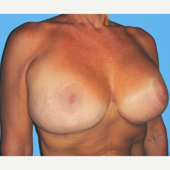 Breast Lift with Implants after 3748852