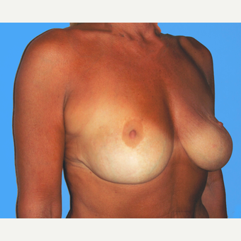 Breast Lift with Implants before 3748852
