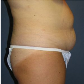 Tummy Tuck before 3720553