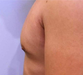 25-34 year old man treated with Male Breast Reduction after 3036489
