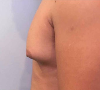 25-34 year old man treated with Male Breast Reduction before 3036489