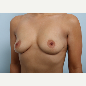 Breast Augmentation before 3345211