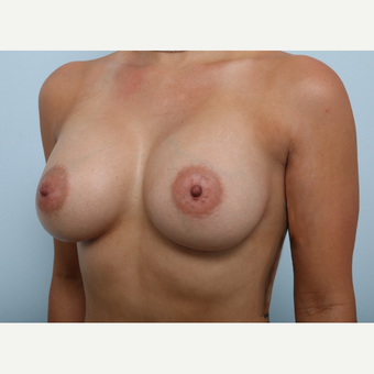 Breast Augmentation after 3345211