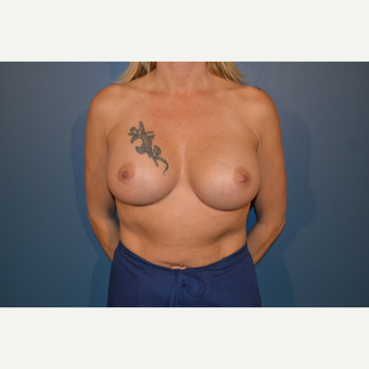 45-54 year old woman treated with Breast Augmentation after 3730491