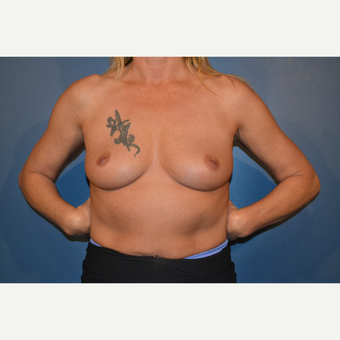 45-54 year old woman treated with Breast Augmentation before 3730491