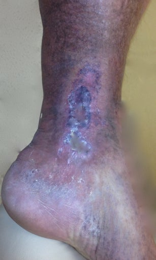 55 year old man with chronic venous stasis ulcer after 997388