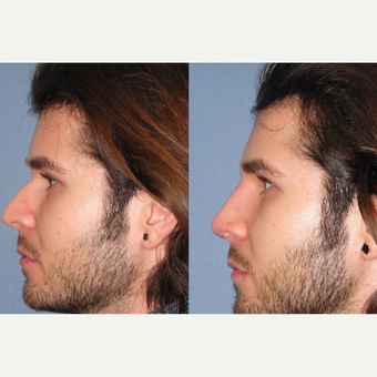 25-34 year old man treated with Rhinoplasty after 3521600