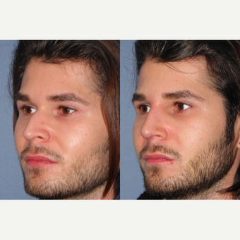 25-34 year old man treated with Rhinoplasty before 3521600
