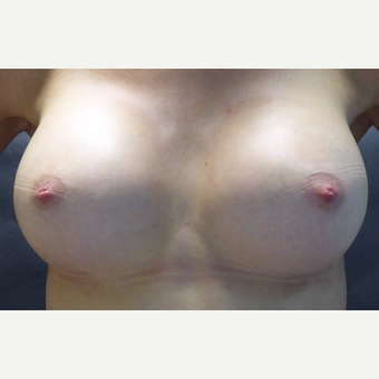 25-34 year old woman treated with Breast Augmentation after 3764896