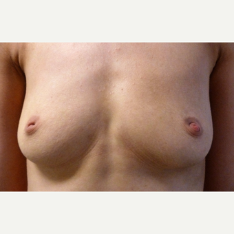 25-34 year old woman treated with Breast Augmentation before 3764896