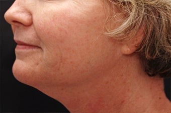 Skin Tightening for the Lower Face and Neck before 123690