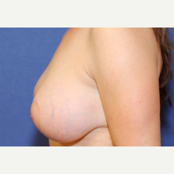 43 year old woman with a bilateral Breast Lift and augmentation after 3523259