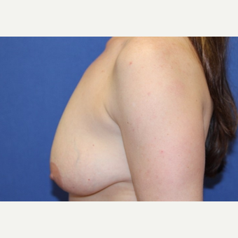 43 year old woman with a bilateral Breast Lift and augmentation before 3523259