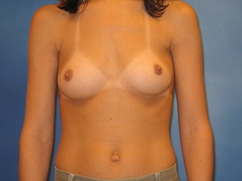 Breast Augmentation before 159266