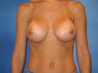 Breast Augmentation after 159266