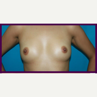 25-34 year old woman treated with Breast Augmentation before 3696454