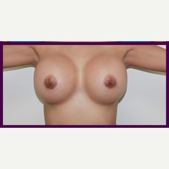 25-34 year old woman treated with Breast Augmentation after 3696454