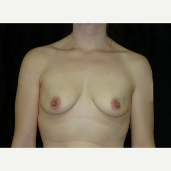25-34 year old woman treated with Breast Augmentation before 3446724