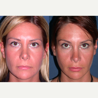 45-54 year old woman treated with Revision Rhinoplasty before 3521370