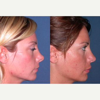 45-54 year old woman treated with Revision Rhinoplasty after 3521370