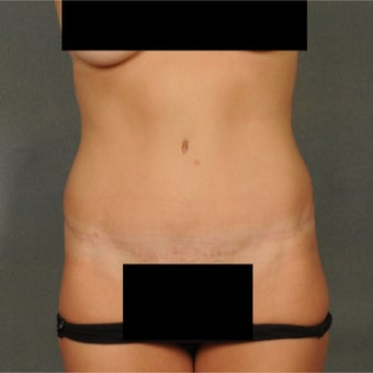 35-44 year old woman treated with Tummy Tuck after 1814832
