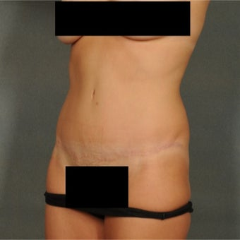 35-44 year old woman treated with Tummy Tuck 1814832