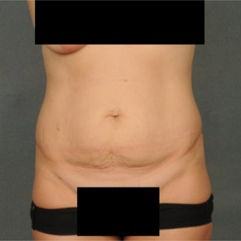 35-44 year old woman treated with Tummy Tuck before 1814832