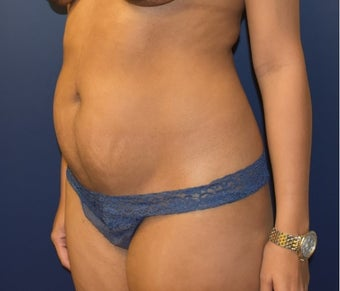 35-44 year old woman treated with Liposuction before 3348733