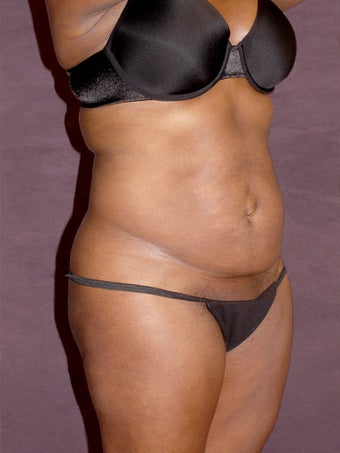 Tummy tuck before 517011