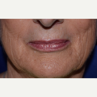 55-64 year old woman treated with Voluma for hollow cheeks before 3657455
