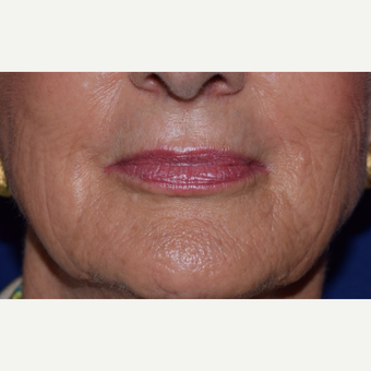 55-64 year old woman treated with Voluma for hollow cheeks after 3657455