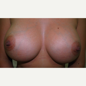 25-34 year old woman treated with Breast Implants after 3103675