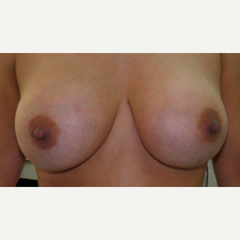25-34 year old woman treated with Breast Implants before 3103675