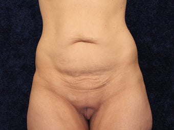 39 Year Old After Gastric Bypass