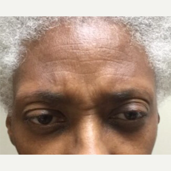 55-64 year old woman treated with Botox before 3584612