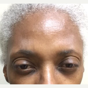 55-64 year old woman treated with Botox after 3584612