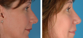 Revision Rhinoplasty before 1208286