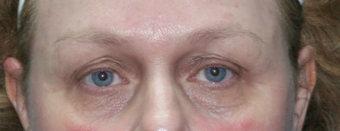 Resurfacing for Under Eye Bags before 1064650