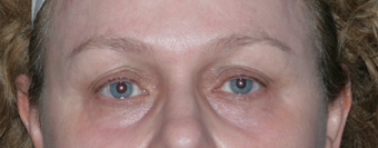 Resurfacing for Under Eye Bags after 1064650