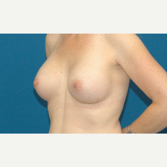 39 year old woman treated with Breast Implants after 3205534