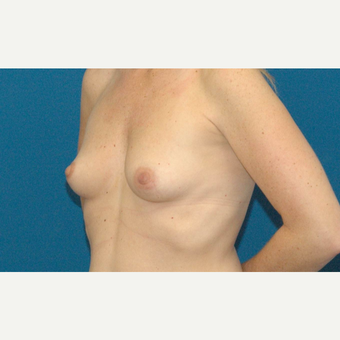 39 year old woman treated with Breast Implants before 3205534