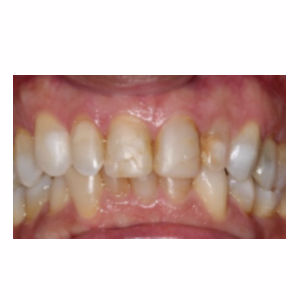Discolord teeth treated with Dental Crown before 3696628