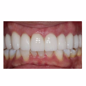 Discolord teeth treated with Dental Crown after 3696628
